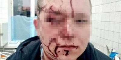 Соцсети: в Киеве пациент разбил врачу голову стулом — фото