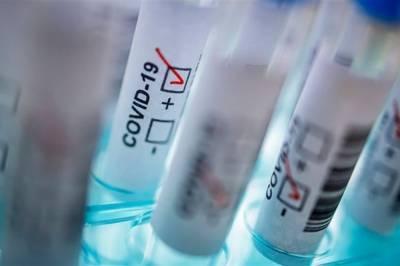 В Украине за сутки выявили почти 12,5 тысяч новых случаев COVID-19, количество больных превысило 745 тысяч