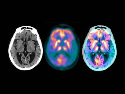 Американские ученые анонсировали успехи лекарства от болезни Альцгеймера, проходящего испытания