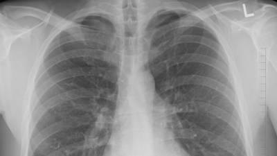 Онколог назвал самые распространенные симптомы рака легких