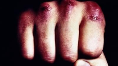 Толпа агрессивных подростков избила молодого инвалида по зрению под Иваново