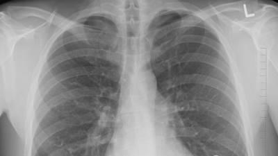 Индийский штамм коронавируса оказался опасен быстрым поражением легких