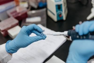 """В TƏBİB оценили вероятность проникновения """"индийского"""" штамма коронавируса в Азербайджан"""