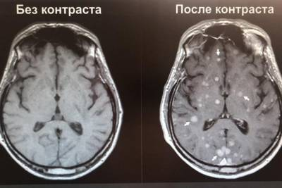 Новосибирские ученые разработали нетоксичные контрастные реагенты для МРТ-исследований
