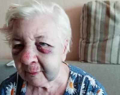 В Волгограде 84-летнюю избитую пенсионерку в 4 утра выставили из больницы