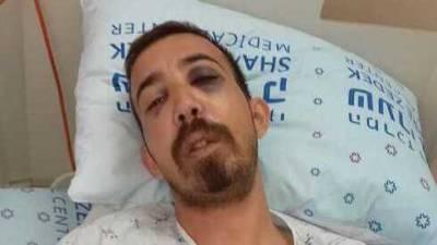 """""""Не убивайте меня, я такой же еврей, как вы"""": в Иерусалиме жестоко избили студента"""