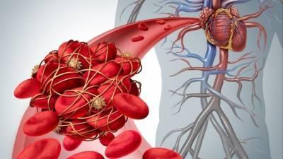Российские ученые разрабатывают средство от тромбоза при COVID из водорослей