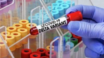 В Черкасской области зарегистрировано 20 случаев инфицирования штаммом Дельта