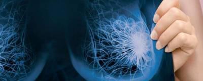 Хронически высокий уровень холестерина способствует метастазированию рака груди