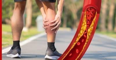 На высокий уровень холестерина укажет симптом на ногах