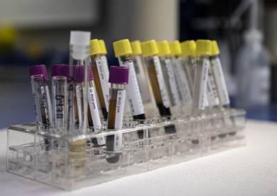За сутки в Беларуси зарегистрированы 1630 пациентов с COVID-19, выписаны 1115