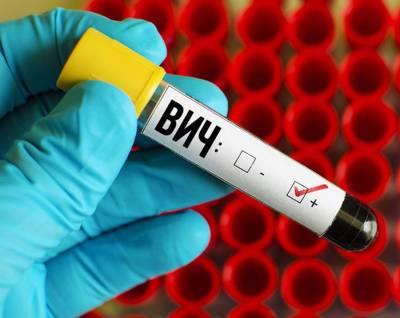 За восемь месяцев 2021 года в Беларуси зарегистрировано 1013 новых случаев ВИЧ-инфекции
