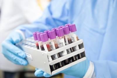В России выявили минимальное число случаев заражения коронавирусом за сутки с 22 июня – 17 425